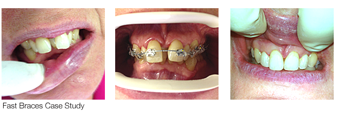 Fastbraces Before-After