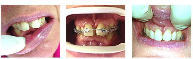 Fast braces orthodontics