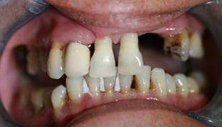 Kiddermister Dental Implants Before