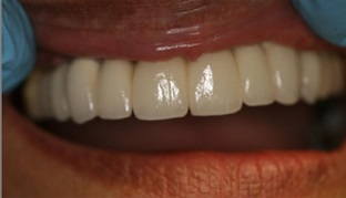 Kiddermister Finished Dental Implant Case