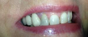 Kidderminster Internal Tooth Whitening Before