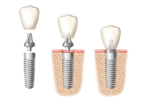Dentist Cleobury Mortimer dental implant placement