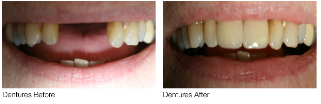Dentures-Before-After