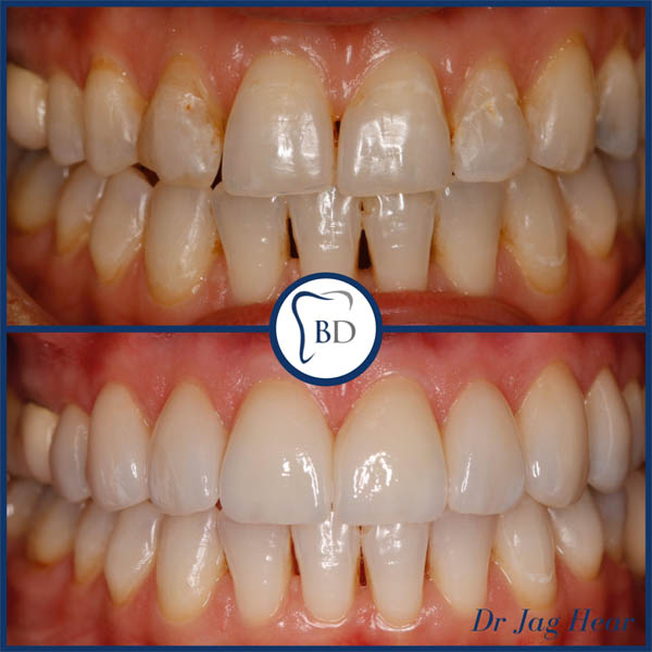 Veneers Smile Make over before and after 1