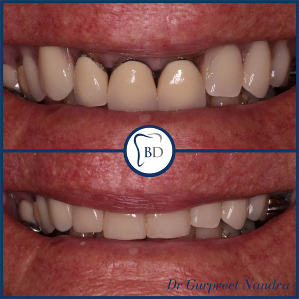 Dental Crowns Before & After 1