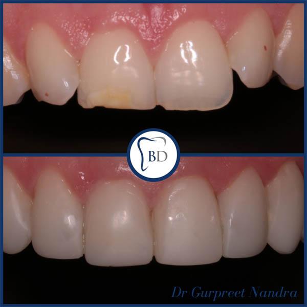 Enlighten Whitening & Composite Bonding Before & After 1