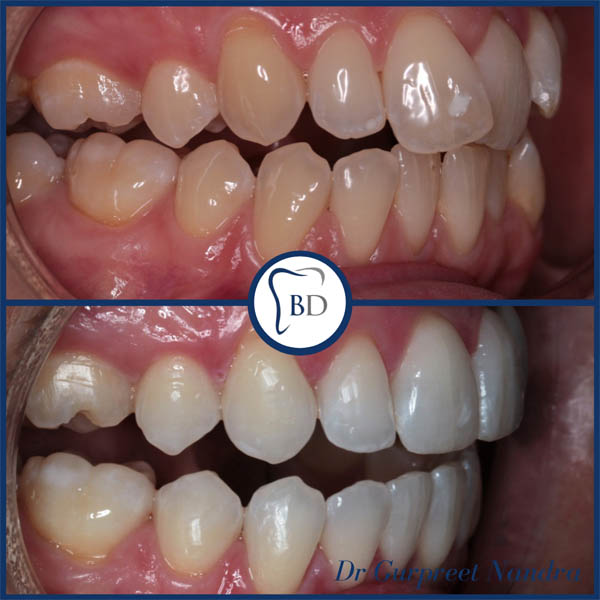 Invisalign & Teeth Whitening Before & After Bewdley 1