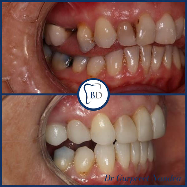 Smile makeover before and after Bewdley 1