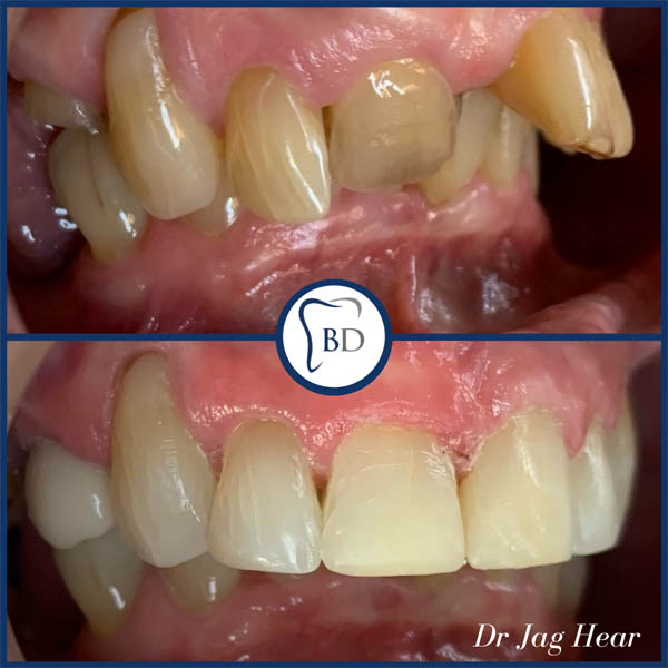 Fast braces before and after 1